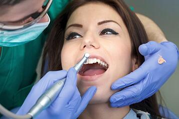 512962507_Professional_dental_brushing