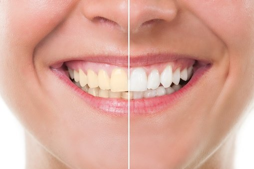 truth on teeth whitening, at-home teeth whitening