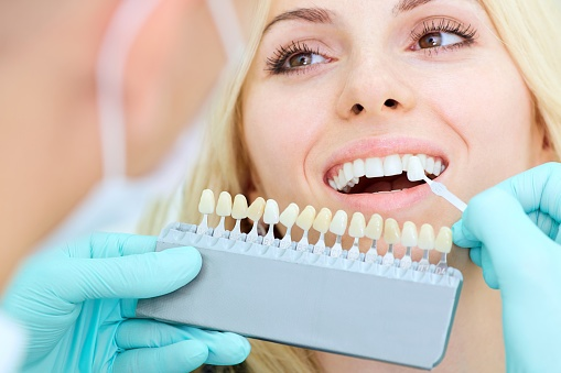 whitening services offered by dentists