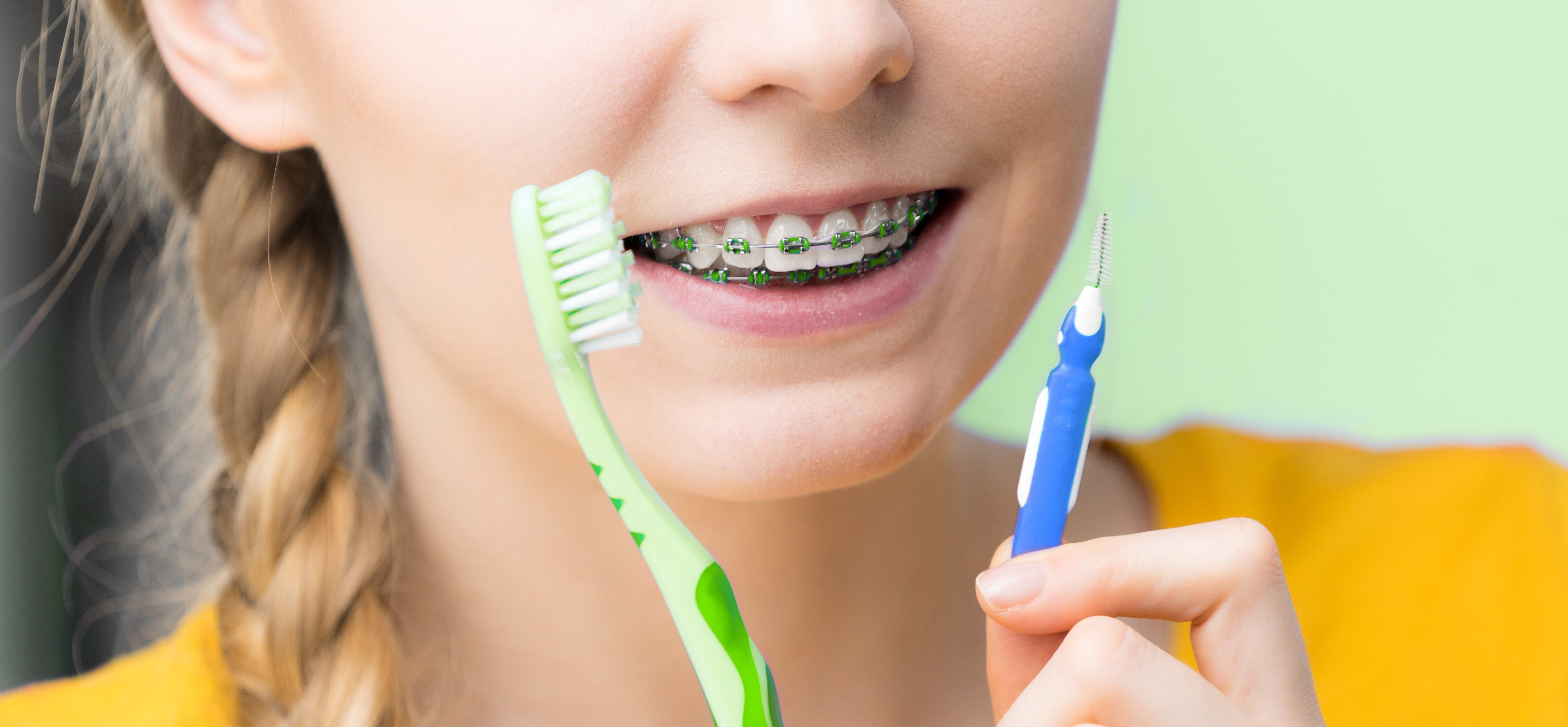 Children with autism and braces, help them prepare, autism, oral health, dental