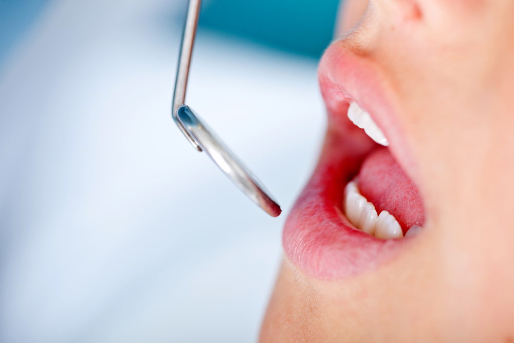 is there a gingivitis cure, simple steps prevent periodontal disease