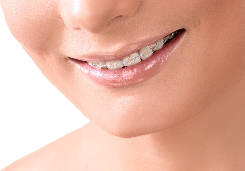 braces, too old for braces think again, oral health, dental insurance, dental health, never too old for braces