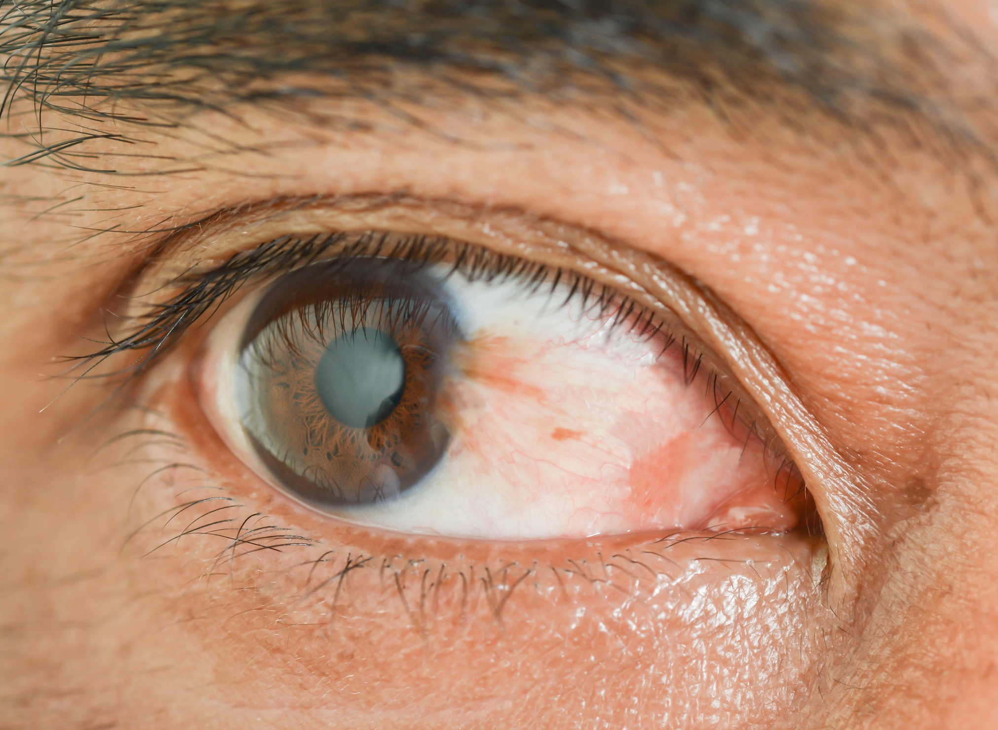 scratched cornea, scratched cornea causes symptoms and treatment, vision, vision insurance, vision health