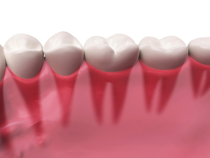types of dental crowns and how to decide which to choose